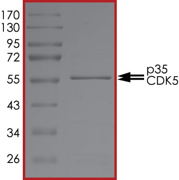 SDS-PAGE - Recombinant human p35 protein (ab126931)
