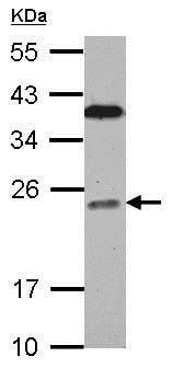 Western blot - Anti-BCL7C antibody (ab126944)