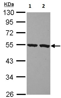 Western blot - Anti-PI-16 antibody (ab127014)