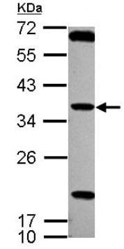 Western blot - Anti-TSSK4 antibody (ab127036)