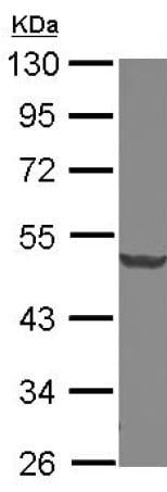Western blot - Anti-Dcp2/TDT antibody (ab127185)