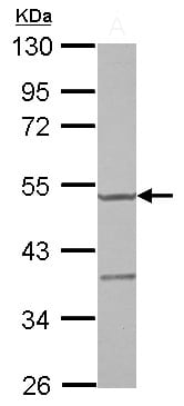 Western blot - Anti-YARS2/TyRS antibody (ab127542)
