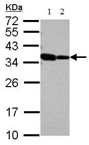 Western blot - Anti-RBM11 antibody (ab127553)