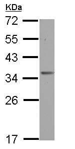 Western blot - Anti-OTUD6B antibody (ab127714)