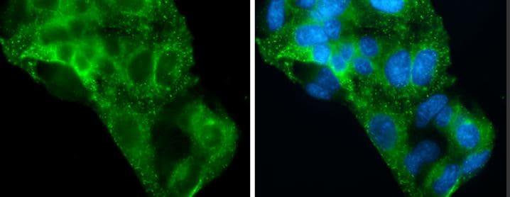 Immunocytochemistry/ Immunofluorescence - Anti-Asialoglycoprotein Receptor 1/HL-1 antibody (ab127896)