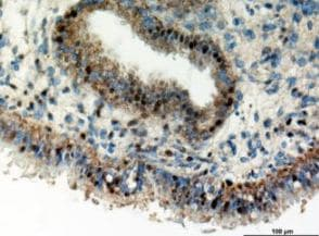 Immunohistochemistry (Formalin/PFA-fixed paraffin-embedded sections) - Anti-CYR61/CCN1 antibody (ab127988)
