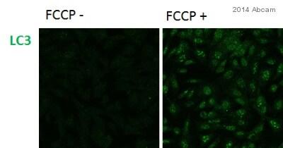 Immunocytochemistry/ Immunofluorescence - Anti-LC3A/B antibody (ab128025)