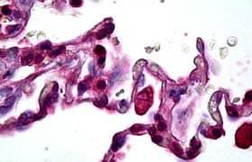 Immunohistochemistry (Formalin/PFA-fixed paraffin-embedded sections) - Anti-MMP12 antibody (ab128030)