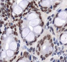Immunohistochemistry (Formalin/PFA-fixed paraffin-embedded sections) - Anti-Glucose Transporter GLUT1 antibody (ab128033)