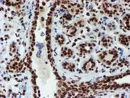 Immunohistochemistry (Formalin/PFA-fixed paraffin-embedded sections) - Anti-PADI4 / PAD4 antibody [OTI4H5] (ab128086)