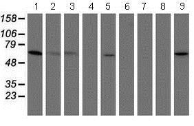 Western blot - Anti-PGM3 antibody [OTI1A11] (ab128094)