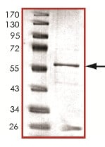 SDS-PAGE - Recombinant Human PPP2CB protein (ab128562)