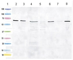 Western blot - Anti-HSD17B4 antibody [2D3BB5BF10] (ab128565)