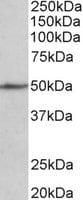 Western blot - Anti-SynCAM/CADM1 antibody (ab128829)
