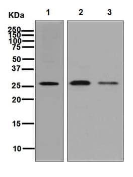 Western blot - Anti-SNRPA1 antibody [EPR7556] (ab128865)