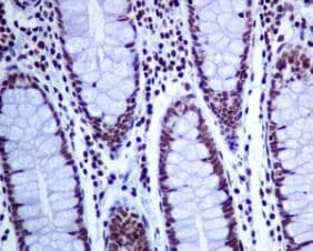 Immunohistochemistry (Formalin/PFA-fixed paraffin-embedded sections) - Anti-CTCF antibody [EPR7314(B)] (ab128873)