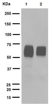 Western blot - Anti-GBA antibody [EPR5143(3)] (ab128879)