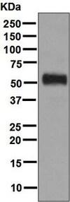 Western blot - Anti-ALDH3A1 antibody [EPR7405] (ab128902)