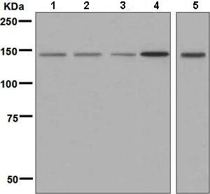 Western blot - Anti-VPS15 antibody [EPR5302(2)] (ab128903)