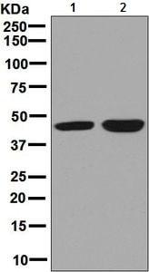 Western blot - Anti-CABP antibody [EPR7916] (ab128910)