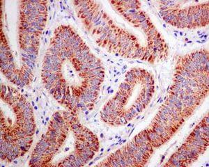 Immunohistochemistry (Formalin/PFA-fixed paraffin-embedded sections) - Anti-ACAA2 antibody [EPR6733] (ab128911)