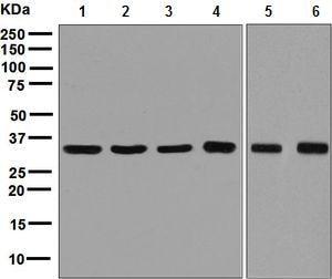 Western blot - Anti-GAPDH antibody [EPR6256] - Loading Control (ab128915)