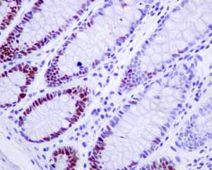 Immunohistochemistry (Formalin/PFA-fixed paraffin-embedded sections) - Anti-MCM3 antibody [EPR7080] (ab128923)