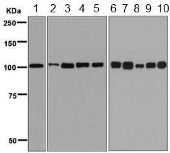 Western blot - Anti-MCM3 antibody [EPR7080] (ab128923)