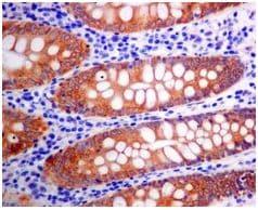 Immunohistochemistry (Formalin/PFA-fixed paraffin-embedded sections) - Anti-Erlin-2 antibody [EPR8089] (ab128924)