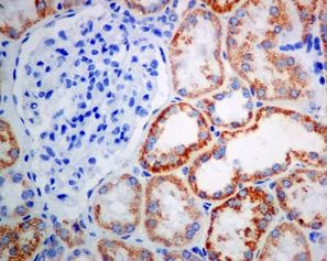 Immunohistochemistry (Formalin/PFA-fixed paraffin-embedded sections) - Anti-ACAA2 antibody [EPR6732(2)] (ab128929)