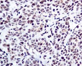 Immunohistochemistry (Formalin/PFA-fixed paraffin-embedded sections) - Anti-PML Protein (phospho S518) antibody [EPR6151] (ab128932)