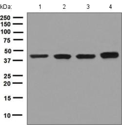 Western blot - Anti-BCKDK antibody [EPR7564] (ab128935)