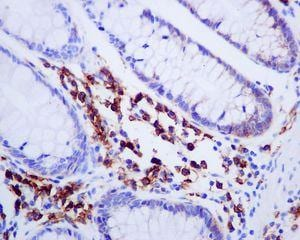 Immunohistochemistry (Formalin/PFA-fixed paraffin-embedded sections) - Anti-Syndecan-1 antibody [EPR6454] (ab128936)