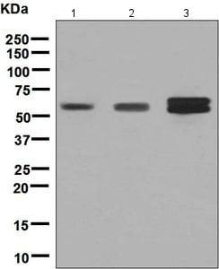 Western blot - Anti-RGS6 antibody [EPR6342] (ab128943)
