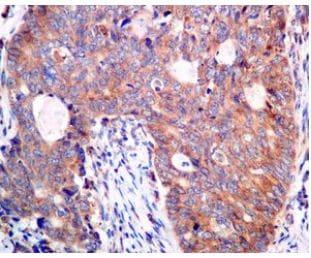 Immunohistochemistry (Formalin/PFA-fixed paraffin-embedded sections) - Anti-AP2S1 antibody [EPR2697(2)] (ab128950)