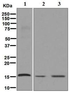 Western blot - Anti-AP2S1 antibody [EPR2697(2)] (ab128950)