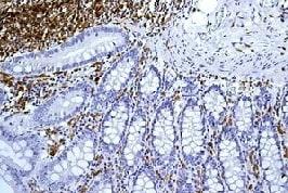 Immunohistochemistry (Formalin/PFA-fixed paraffin-embedded sections) - Anti-HLA-DQA1 antibody [EPR7300] (ab128959)