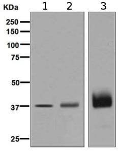 Western blot - Anti-Podoplanin / gp36 antibody [EPR7072] (ab128994)