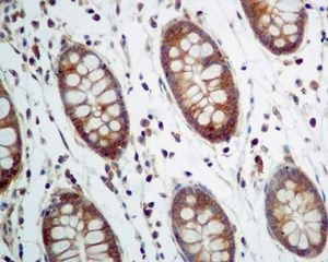 Immunohistochemistry (Formalin/PFA-fixed paraffin-embedded sections) - Anti-ANTXR2/CMG-2 antibody [EPR7717] (ab129004)