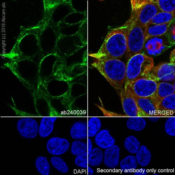 Immunocytochemistry/ Immunofluorescence - Anti-PDLIM1/CLP36 antibody [EPR7186(B)] (ab129015)