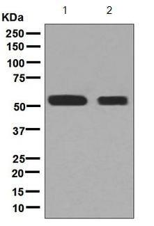 Western blot - Anti-ALDH5A1/SSADH antibody [EPR7794] (ab129017)