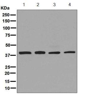 Western blot - Anti-Arp2 antibody [EPR7979] (ab129018)