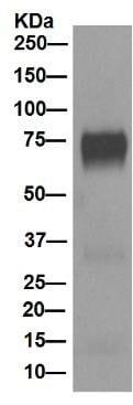 Western blot - Anti-5T4 antibody [EPR5530] (ab129058)