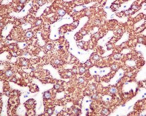 Immunohistochemistry (Formalin/PFA-fixed paraffin-embedded sections) - Anti-CPS1 antibody [EPR7493-3] (ab129076)