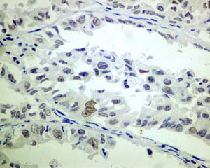 Immunohistochemistry (Formalin/PFA-fixed paraffin-embedded sections) - Anti-ERCC1 antibody [EPR7062] (ab129093)