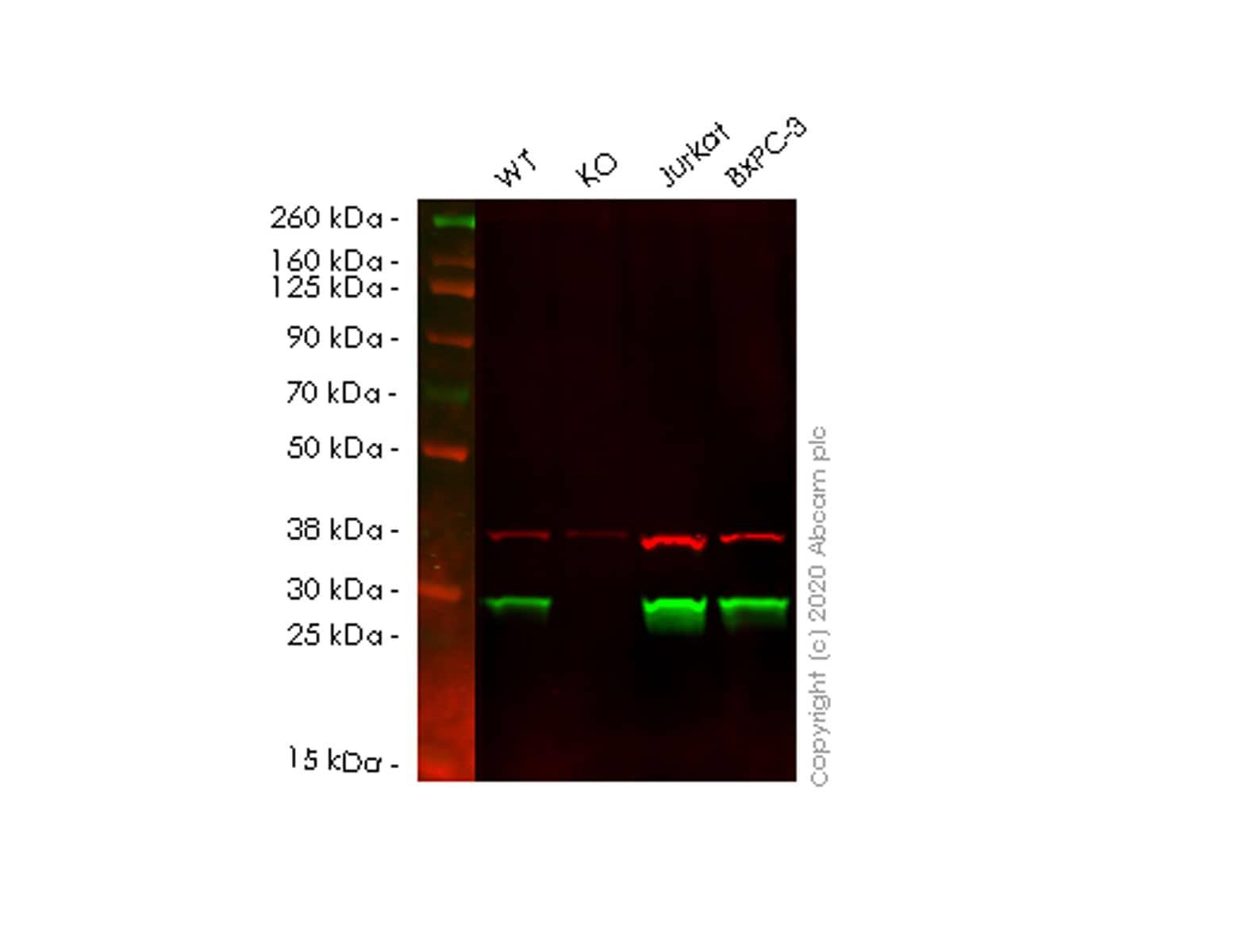 Western blot - Anti-glutathione S transferase Omega 1/p28 antibody [EPR8370(B)] (ab129106)