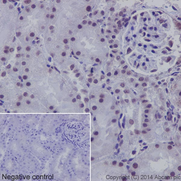 Immunohistochemistry (Formalin/PFA-fixed paraffin-embedded sections) - Anti-SF2 antibody [EPR8239] (ab129108)