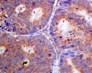 Immunohistochemistry (Formalin/PFA-fixed paraffin-embedded sections) - Anti-PFDN5 antibody [EPR7755] (ab129116)