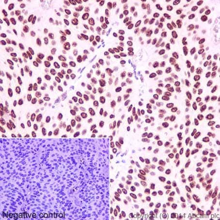 Immunohistochemistry (Formalin/PFA-fixed paraffin-embedded sections) - Anti-HMGA1 antibody [EPR7839] (ab129153)