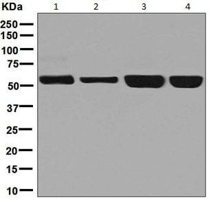 Western blot - Anti-NARS antibody [EPR8221] (ab129162)